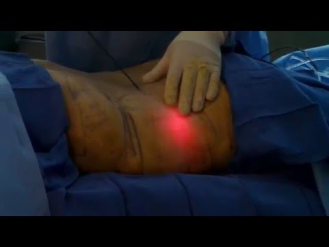Laser Lipo Part 3 of 6