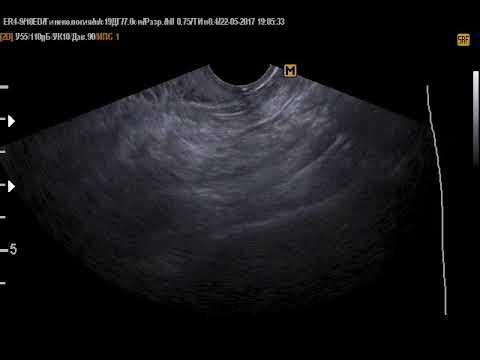 Тазовая дистопия левой почки (22-5-17)
