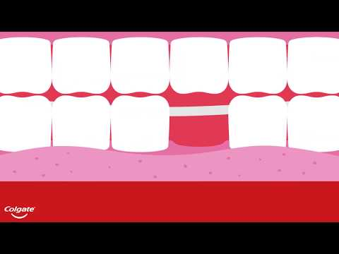 The Four Types Of Dental Bridges