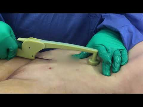 Liposuction Revision Abdomen with BodyTite with Dr. Hughes 1