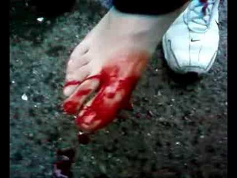 Coupure avec un bout de verre youtube - Bout de verre dans le pied ...