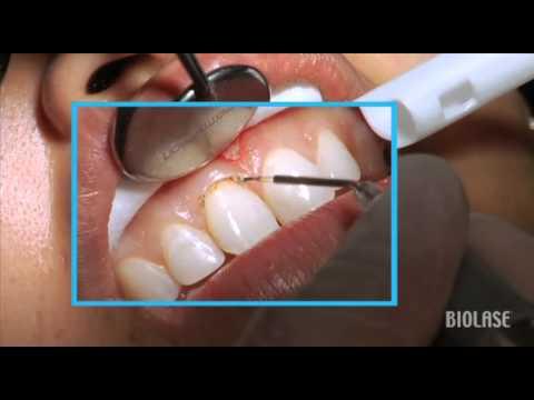 Gingivectomie cu laserul