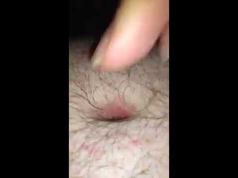 Rotten belly button