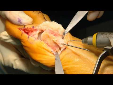 CHEVRON Osteotomy with LATERAL RELEASE (ENG)
