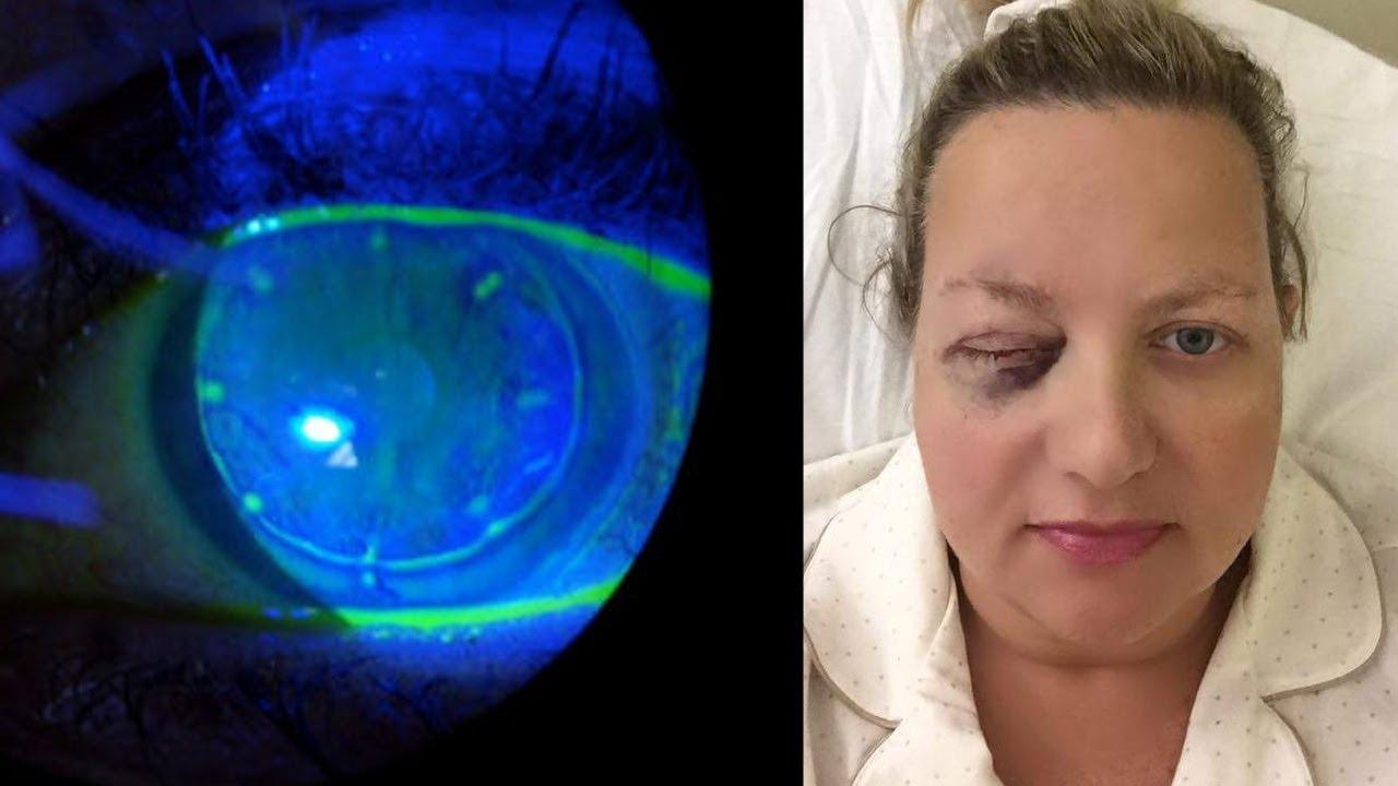 cirugia laser ocular riesgos