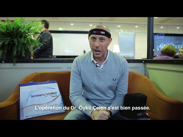 Greffe de cheveux Turquie – Témoignage de M. Emiliano Ragno – Dr. Öykü Çelen – Skin Health Turkey