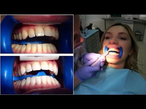 Вопрос: Как отбелить зубы?