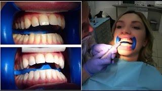 отбеливание ЗУБОВ / Подробно Весь Процесс / teeth whitening