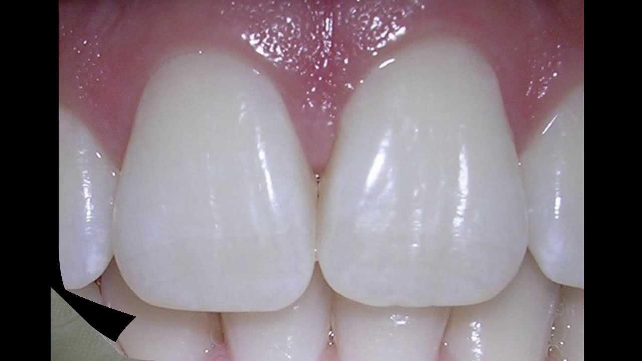 Tipos de dientes en la boca - YouTube