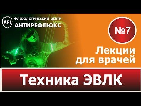 Техника ЭВЛК. Лекция 7. Как выполнять лазерную облитерацию вен