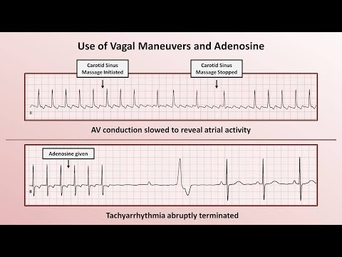 Intro to EKG Interpretation - How to Identify Any Tachyarrhythmia with 6 Easy Questions