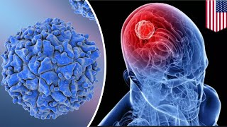 Brain cancer treated with modified polio virus - TomoNews
