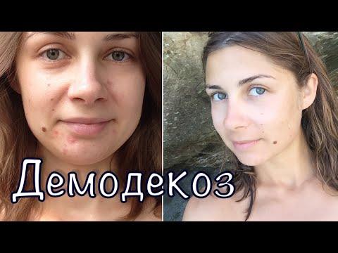 ДЕМОДЕКОЗ - моя история болезни / Подкожный КЛЕЩ, акне, ПРЫЩИ
