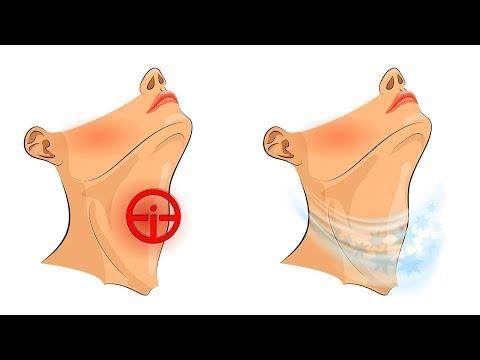 4 Tipps, wie du Halsschmerzen schnell los wirst!