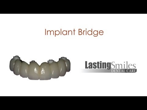 Implant Screw Retained Bridge