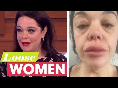 Lisa Riley Denies Having Lips Fillers and Explains Her Swollen Appearance | Loose Women