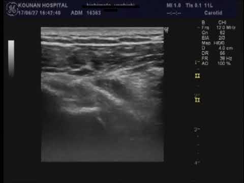 筋 膜 リリース 注射