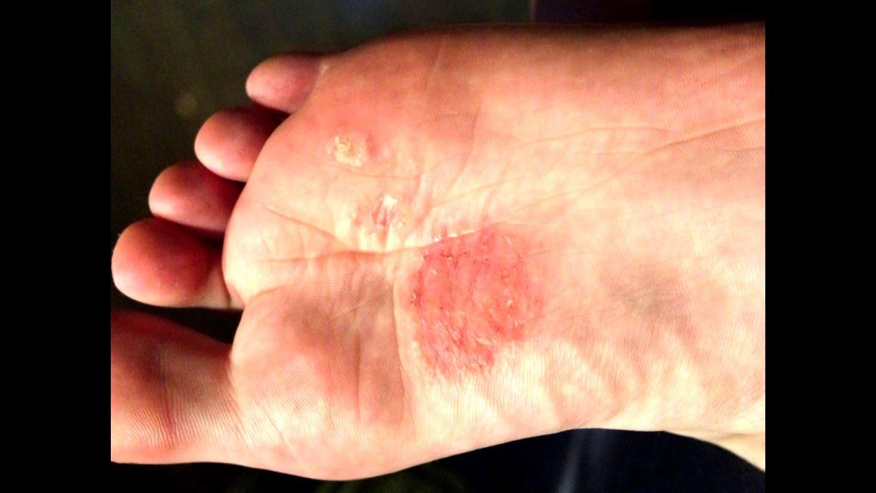 Цена мази от грибка ногтей тинедол