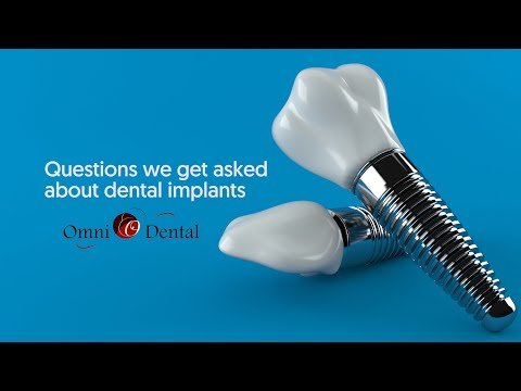 questions-about-dental-implants-answered