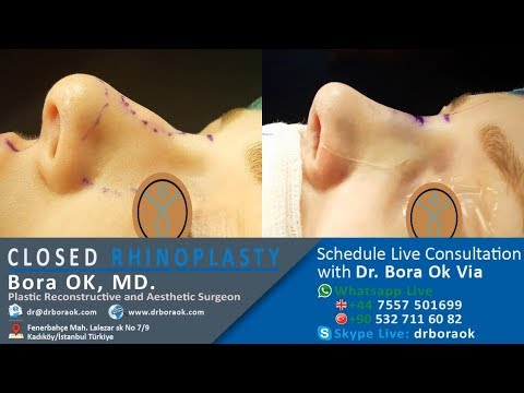 Dr. Bora Ok Closed Rhinoplasty (Scarless, Natural Nosejob) Surgery #Generalsurgery