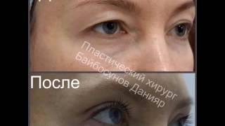 Блефаропластика Алматы