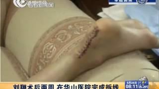 刘翔伤口曝光 术后两周华山医院完成拆线