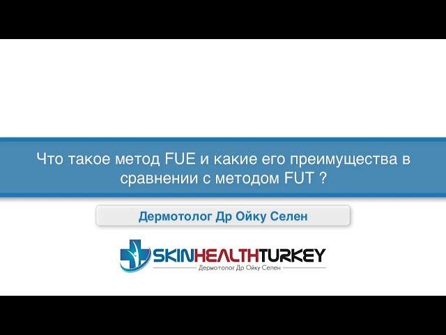 Что такое метод FUE и каке его преимущества в сравнении с методом FUT ?