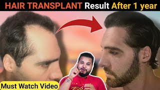 LEONEL'S 1 YEAR RESULT OF HAIR TRANSPLANT IN INDIA 2020 ||Sourav Mridha