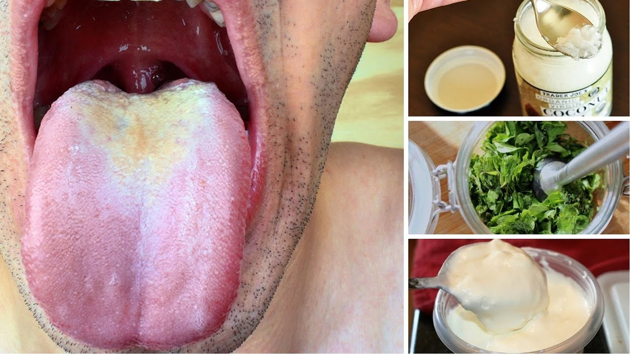 Natural cure for hairy tongue