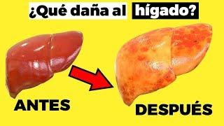 HÍGADO GRASO: 12 alimentos para prevenirlo  y 6 alimentos PROHIBIDOS, qué comer para el hígado graso