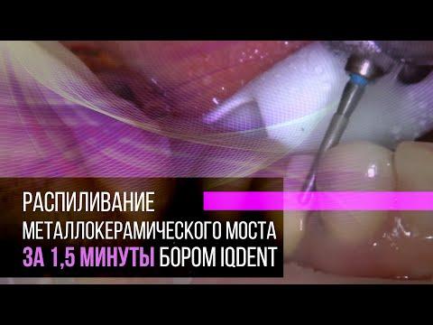 Распиливание металлокерамического моста за 1,5 минуты бором IQDent
