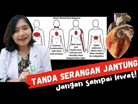 5 Gejala Awal Sakit Jantung Yang Perlu Di Waspadai Dr Ema Surya P Youtube