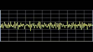 Tinnitus (Ringing in the Ears) - Rife Frequencies