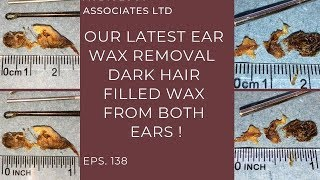 DARK HAIRY EAR WAX REMOVAL - EP 138