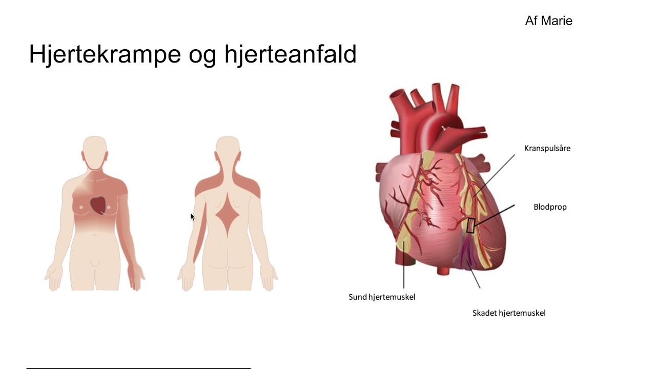 hjertekrampe