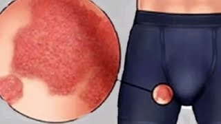 Home Remedies To Cure Fungal Infection Between Thighs | How to Get Rid of Jock Itch