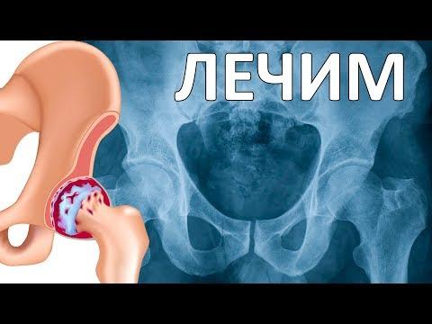 Артроз тазобедренного сустава: симптомы и лечение