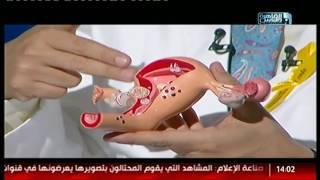 الدكتور | الجديد فى علاج بطانة الرحم المهاجرة مع الدكتور سيد الاخرس