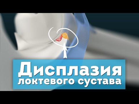 Переломы локтевого отростка локтевой кости - симптомы