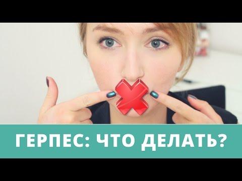 Как избавиться от простуды на губах? Народные средства