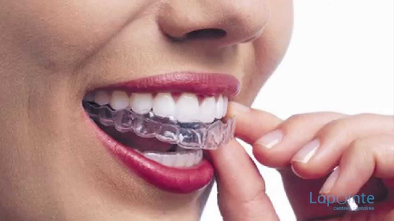 how to clean invisalign v