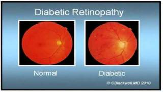 Diabetes 4: Diabetes and the Eye