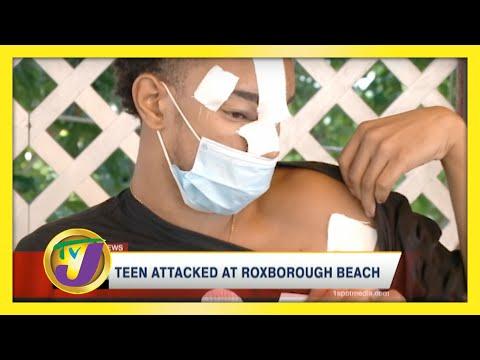 Teen Attacked at Roxborough Beach   TVJ News