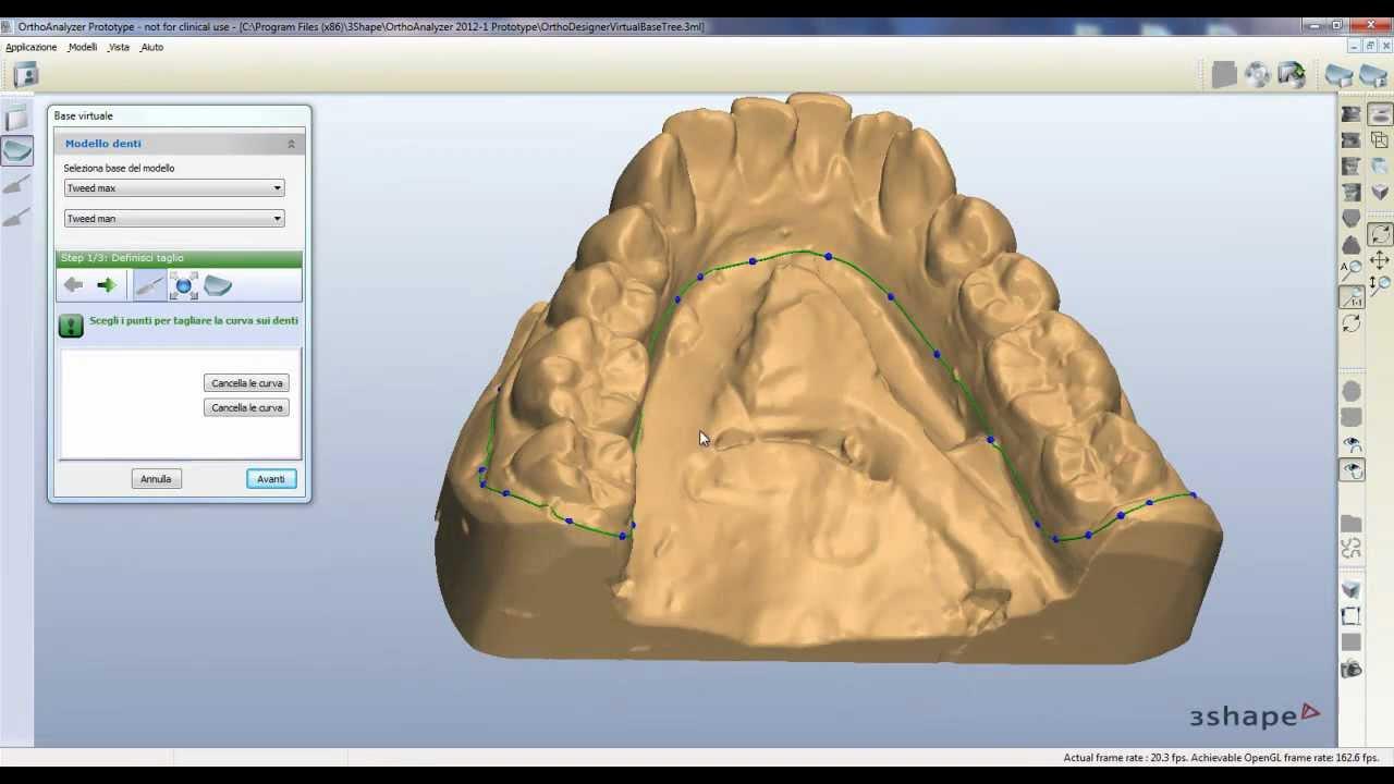 Sculpt tool for virtual base