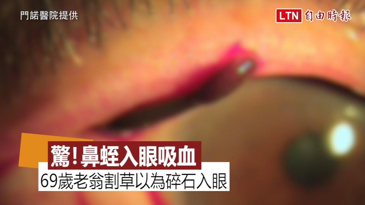 驚!花蓮男子割草 「鼻蛭」彈入眼睛黏膜吸血(門諾醫院提供)