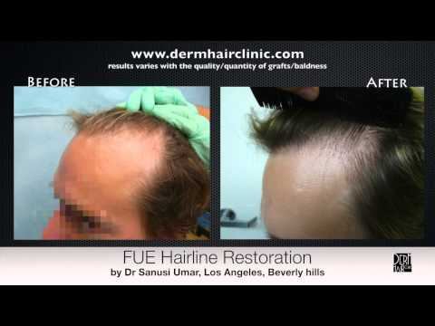 Transformation Through FUE Hairline Surgery --Before & After Video For Thousand Oaks