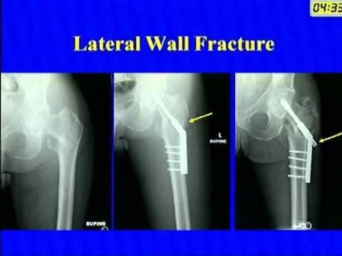 DHS(dynamic hip screw) | Doovi