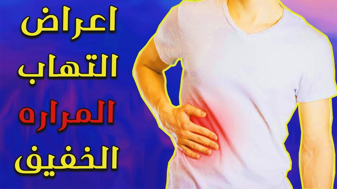 أعراض التهاب المرارة الخفيف