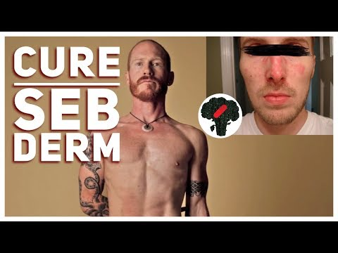 How To Cure Seborrheic Dermatitis Permanently - YouTube