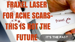 hqdefault - Does Fraxel Laser Work On Acne Scars